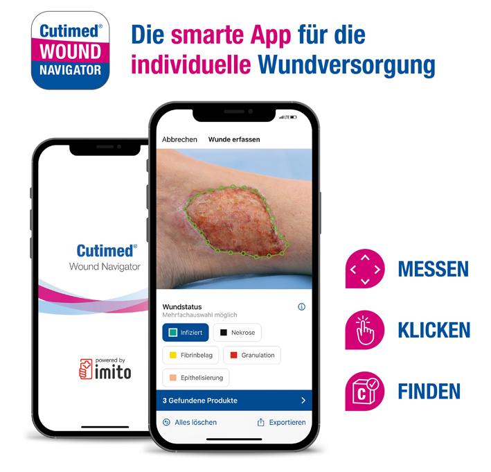 https://www.monitor-pflege.de/news/essity-ventures-entwickelt-mit-schweizer-start-up-digitale-loesung-fuer-wundversorgung/image
